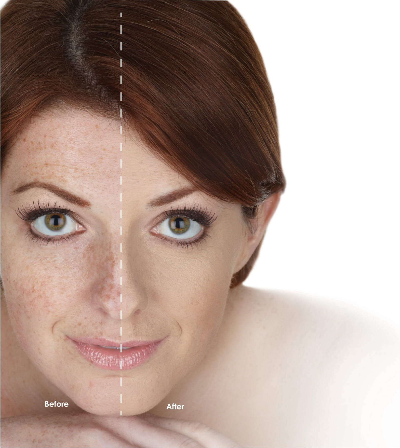 Anti Aging: Hydroxatone Anti-Aging BB Cream, 2 Pack